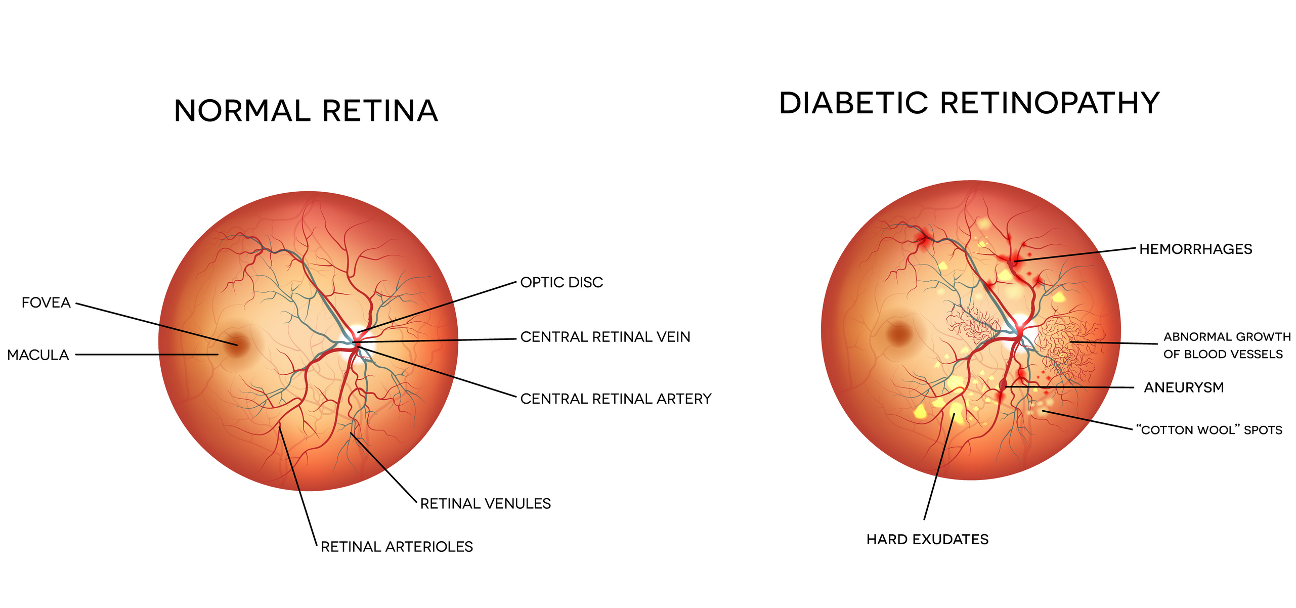 Demonstration of how Diabetic Retinopahy manifests itself in an individuals eye. Figure taken from [Dr. Winston J. Scott's website.](http://wjscottmd.com/diabetic-retinopathy/)
